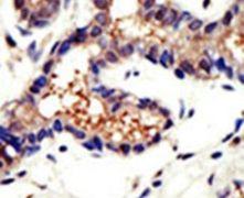 Ubiquilin 3 Antibody (PA5-12080)