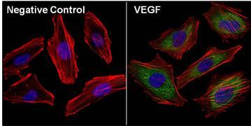 VEGF Antibody (M808)