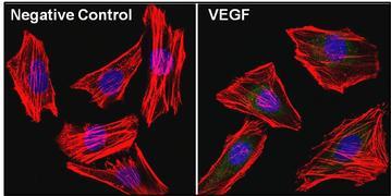 VEGF Antibody (MA5-12949)