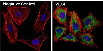 VEGF Antibody (P802)