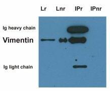 Vimentin Antibody (MA1-19168)