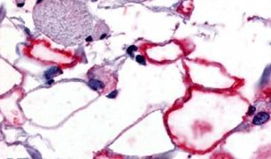 VIPR1 Antibody (PA5-34302)