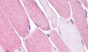 VMDL3 Antibody (PA5-33365)