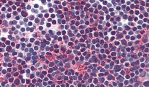VIPR2 Antibody (PA5-34304)