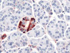 Vinculin Antibody (PA5-32639)