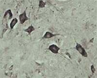 VPS45 Antibody (OSV00016W)