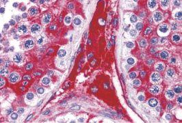 WDR35 Antibody (PA5-34370)