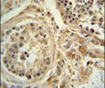 POC1B Antibody (PA5-24495)