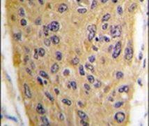 WIF1 Antibody (PA5-12300)