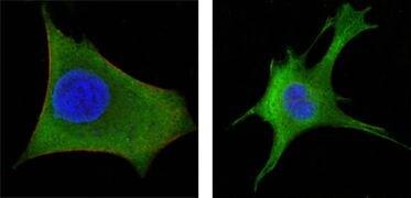 WNT1 Antibody (MA5-15544)