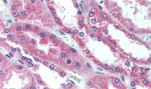 WNT1 Antibody (PA5-34311)