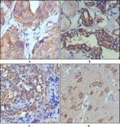 WNT5A Antibody (MA5-15502)
