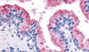 WNT8A Antibody (PA5-34331)