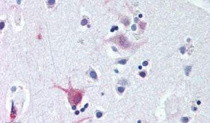 WNT8B Antibody (PA5-34332)