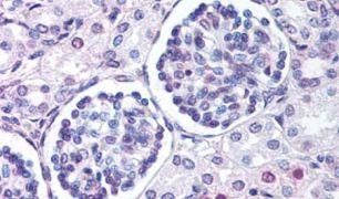 WNT9B Antibody (PA5-34336)
