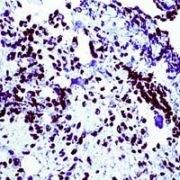 WT1 Antibody (PA1-38865)