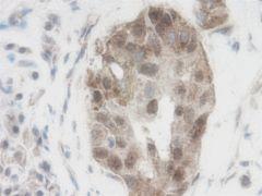 WNT1 Antibody (PA1-84986)