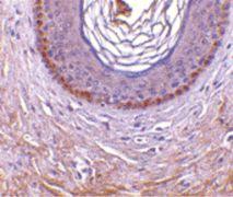 EDA2R Antibody (PA5-20230)