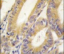 XIAP Antibody (PA5-13116)