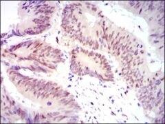 YAP1 Antibody (MA5-17200)
