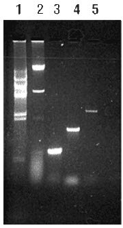 Extraction of yeast genomic DNA and subsequent PCR amplification