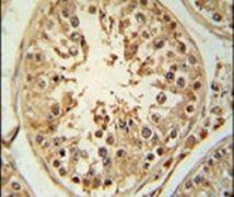 ZBTB5 Antibody (PA5-25225)