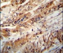 ZC3H15 Antibody (PA5-24351)