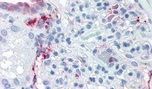 ZIP14 Antibody (PA5-34202)