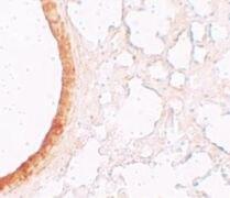 SLC39A3 Antibody (PA5-21068)