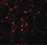 SLC39A5 Antibody (PA5-21070)