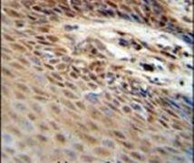 ZNF324B Antibody (PA5-24105)