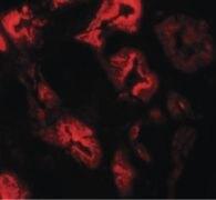 ZNF346 Antibody (PA5-21107)