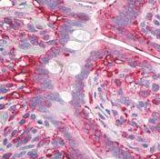 AGR2 Antibody (MA5-16244)