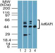 ARFGAP1 Antibody (PA5-23344)