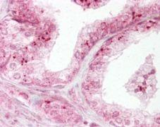 DIABLO Antibody (PA1-41007)