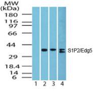 S1PR2 Antibody (PA5-23208)