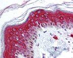 FOXO3 Antibody (PA5-23191)