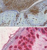 HMGB1 Antibody (MA5-16264)