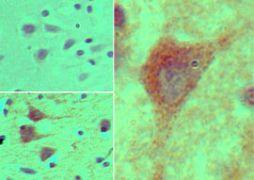 HOXB4 Antibody (PA5-23366)