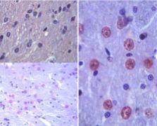 Latexin Antibody (PA5-23239)