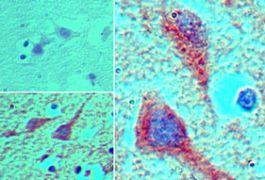 MEIS1 Antibody (PA5-23376)