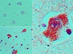 Nestin Antibody (PA5-23386)