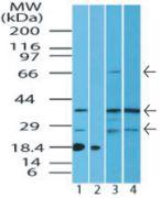 ST2 Antibody (PA5-23316)