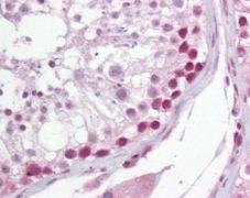 UNG Antibody (PA1-41024)