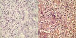 Wnt5A Antibody (PA5-23178)