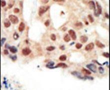 cGKII Antibody (PA5-15223)