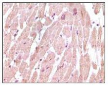 Cardiac Troponin I Antibody (MA5-15270)