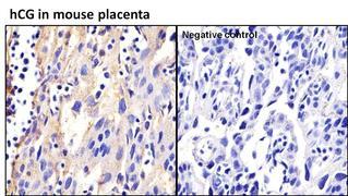 hCG Antibody (MA5-14680)
