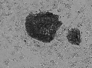 Live human iPSC cells were stained using Alkaline Phosphate (A14353) stain and imaged on the FLoid® Cell Imaging Station (Cat.no. 4471136).