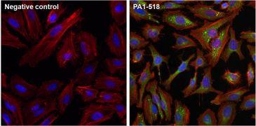 mTOR Antibody (PA1-518)